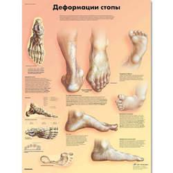 מפת בעיות רגל