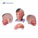 דגם ראש וצוואר 4 חלקים  3B Scientific